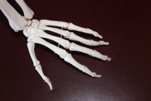 דלקת מפרקים - תמונה ראשית למאמר